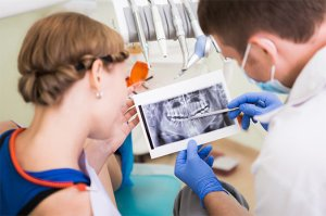 Tooth-X-Ray-in-issaquah